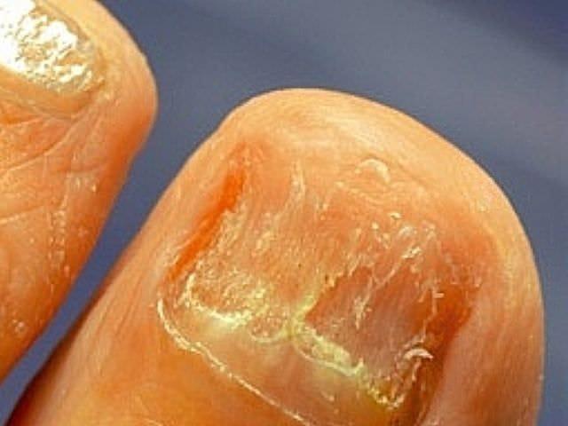 Грибок ногтей как вылечить мандарином